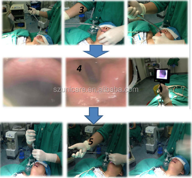 flexible 3.8 mm endoscope urology endoscopic instruments