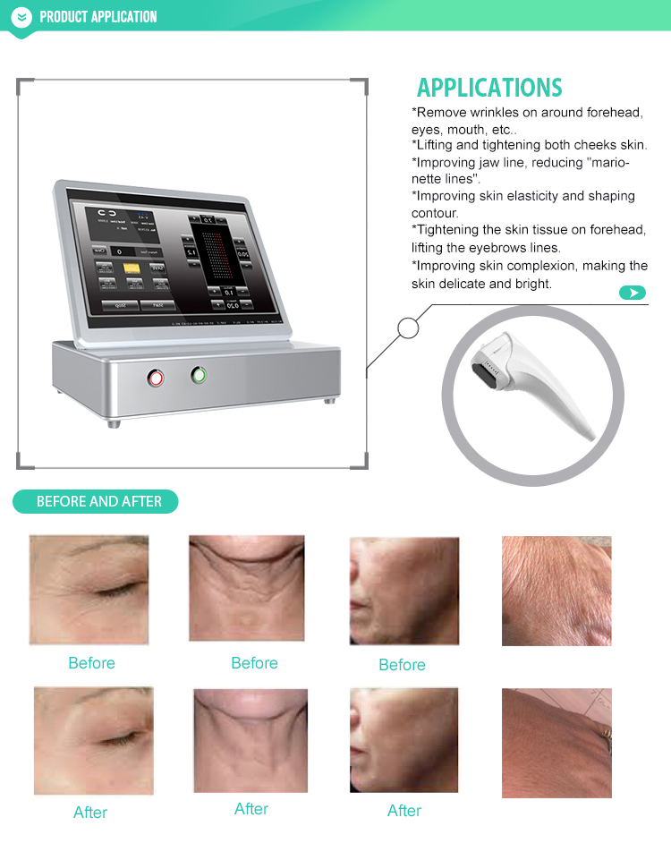 19000 Shots  3D HIFU With 11 Lines for Face Lifting and Body Slimming