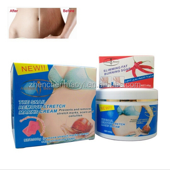 Aichun Beauty 300g Snail Remove Stretch Marks Scar Removal Cream 40g ...