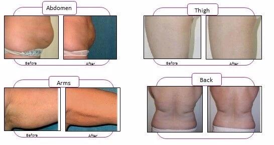 3d-lipo-laser-slimming-cellulite-laser-fat-removal-laser-machine-for-sale.jpg