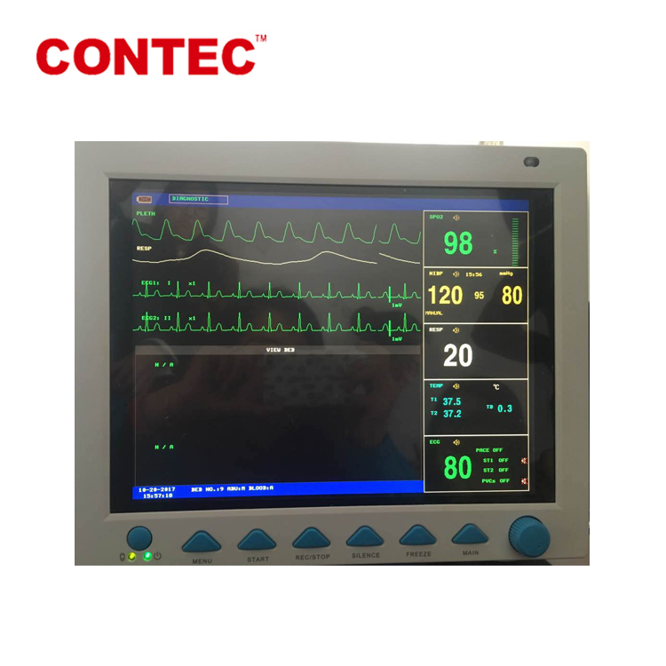 CONTEC CMS8000 CE Approved Medical Portable Multi Parameter Patient Monitor