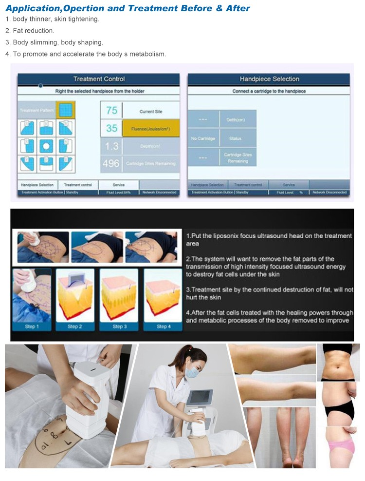 2016 Hottest Promotion!!! liposonix hifu slimming equipment/liposonix machine