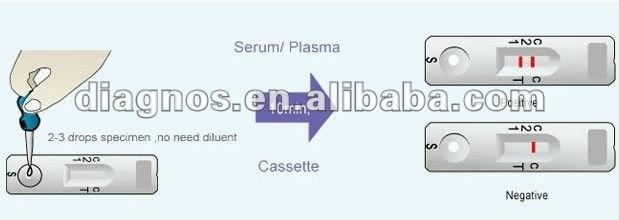 Ce/iso Certificated One Step Hbsag Hepatitis B Rapid Test Kits ...