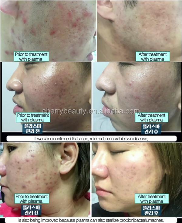 eye lift plasma skin care device plasma jet for acne scars