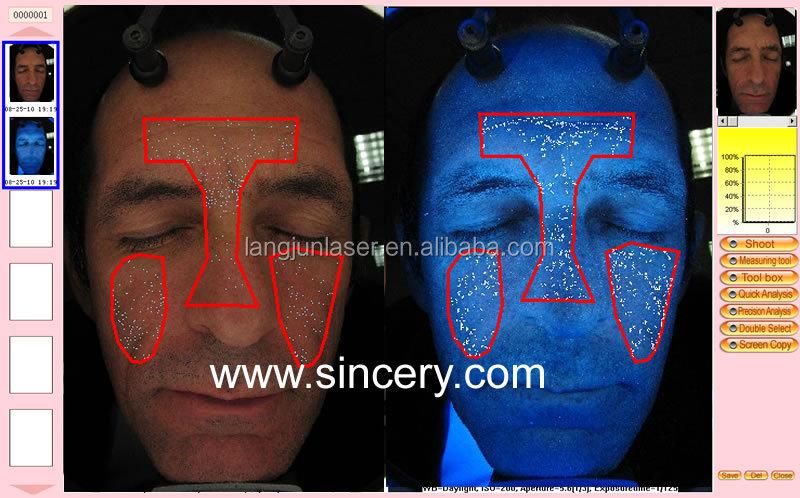 Face Camera Woods Lamp Reveal Skin Ysis Machine