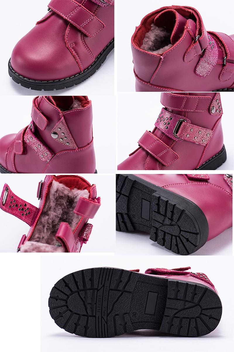 2020 Winter Children Orthopedic Shoes 100% Natural Fur ... Orthopedic Shoes For Kids That Tiptoe