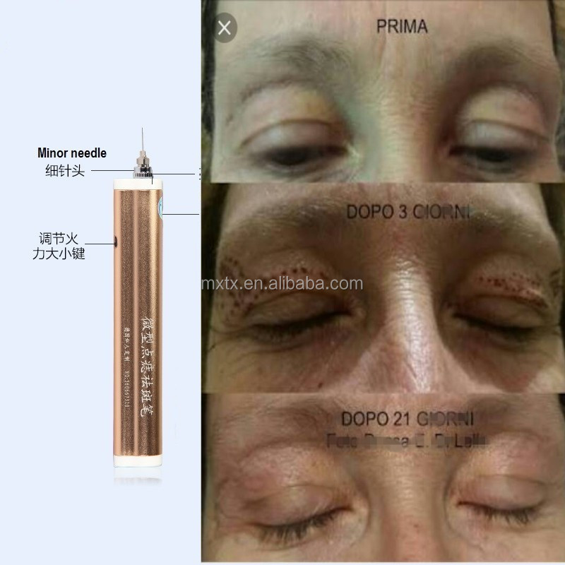 Blepharoplasty plasma pen for mole scar wrinkle removal skin tightening and lifting
