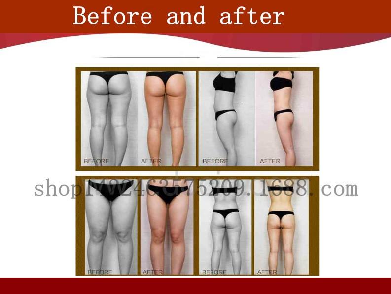 New Technology For Hifu Slimming!!! Hifu Body Weight Loss Machine/new Hifu  Technology Aimed At Body Weight - Buy New Technology,Hifu Slimming,Weight