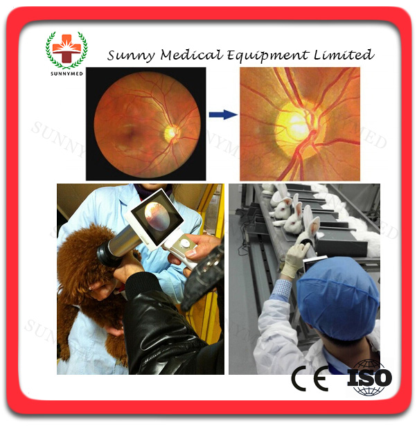 sy v042 best quality hand held fundus camera hfc medical ophthalmology diagnosis fundus camera - Best Camera For Medical Photography