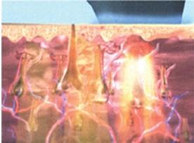 Ontharen Met Licht : Ce fda gecertificeerd permanente schoonheid apparatuur ontharen e