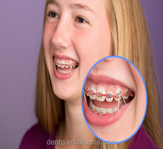 Attractive Price Teeth Gap Bnads For Braces / Dental Ortho Elastic Rubber Bands