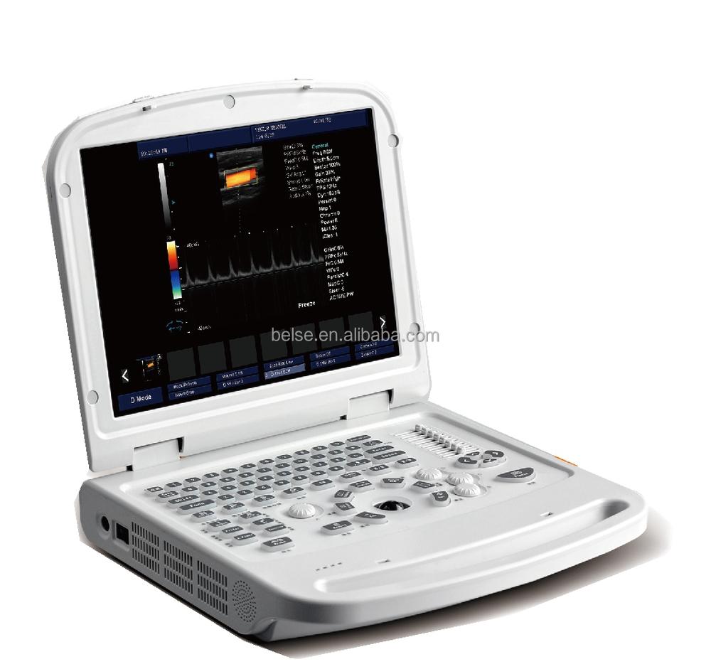 laptop Color Doppler medical diagnostic Ultrasound machine