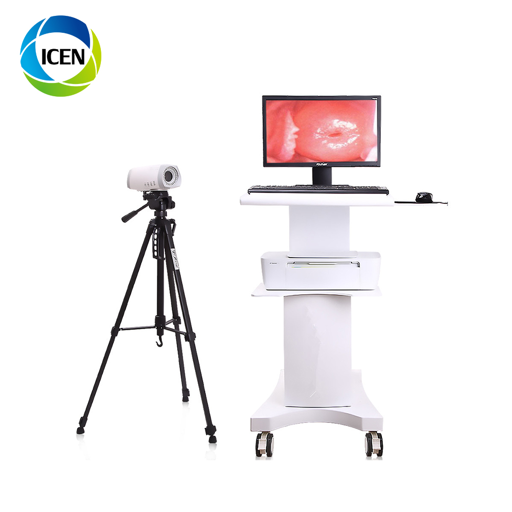 IN-G9800T Kernel Colposcopy Machine Digital Sony CCD Camera 1080P HD vagina Pictures Colposcope With Video And Software