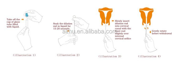 laminaria like natural cervical dilator  sc 1 st  Alibaba & Laminaria Like Natural Cervical Dilator - Buy DilatorCervical ...