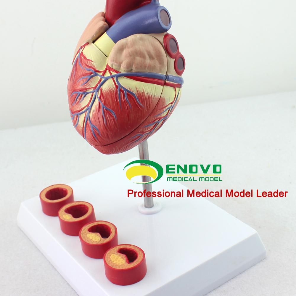 HEART05 (12481) de tamaño anatomía del corazón humano en 2 parte con ...