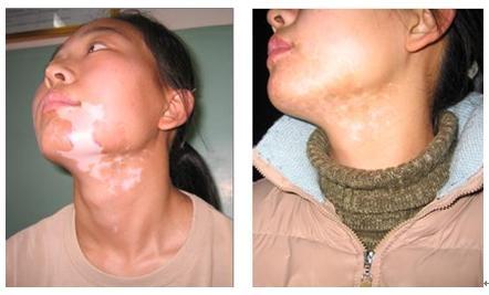 Narrow Band Uv Lamp Vitiligo -laser Physical Therapy Equipemnt ...