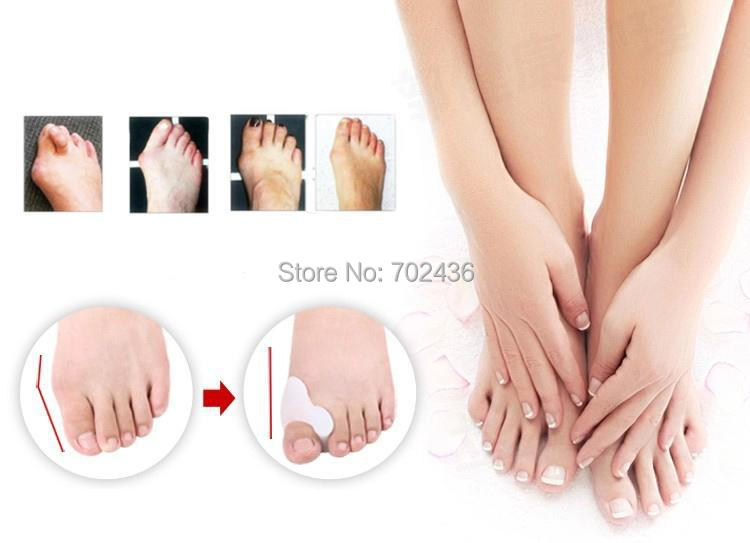Hallux valgus pro foot Toes separator gel toe bunion corrector shield orthopedic braces correct orthotics big bone toe juanete