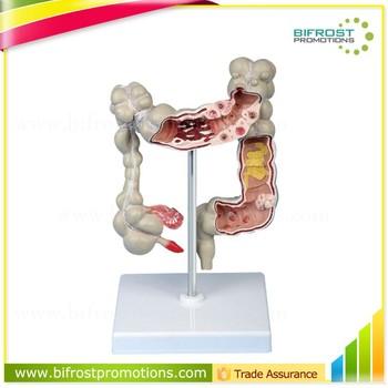 Pathology colon model organs human body anatomy buy colon model pathology colon model organs human body anatomy ccuart Choice Image