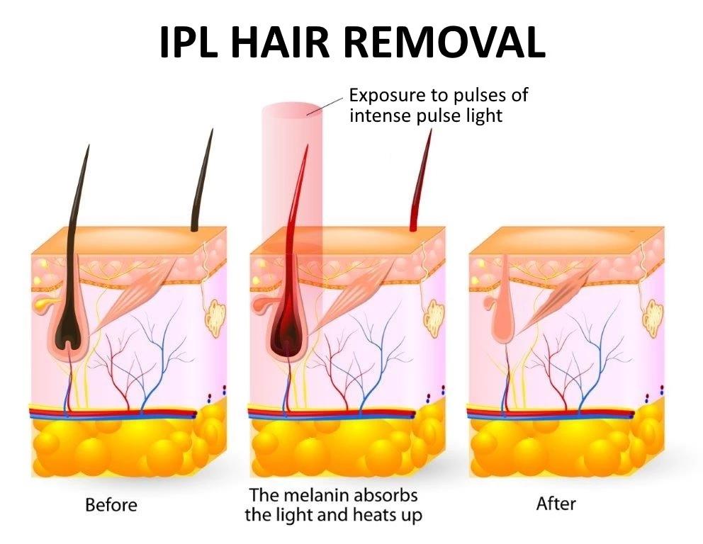 プロのレーザー Ipl 脱毛リムーバーシェーバー家庭用脱毛デバイス