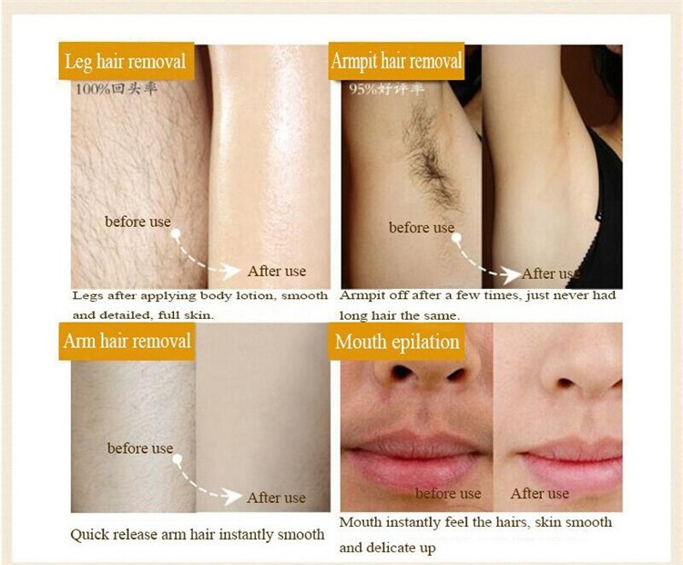 permanent facial hair curling removal cream buy permanent hair Tanning Lotion Before and After permanent facial hair curling removal cream