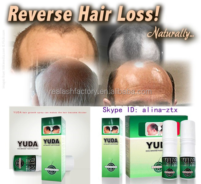 Best Hair Regrowth Produce On The Market