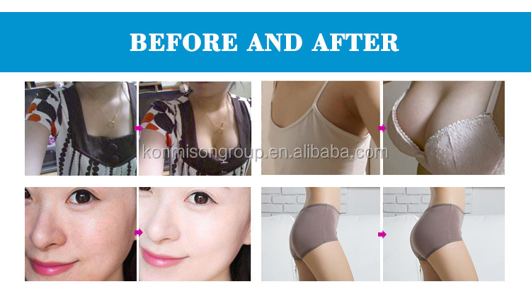 Breast Enlargement Machine