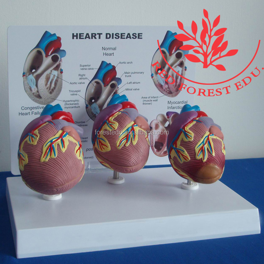 Desk education model set of three heart disease model
