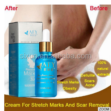 Oem Natural Best Pregnancy Stretch Mark Removal Creams For Anti