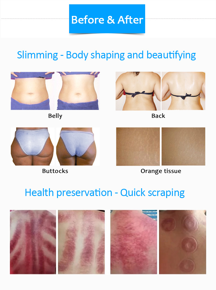 China Factory Price Fat Removal Machine Body Slimming Ultrasonic RF Vacuum Cavitation System