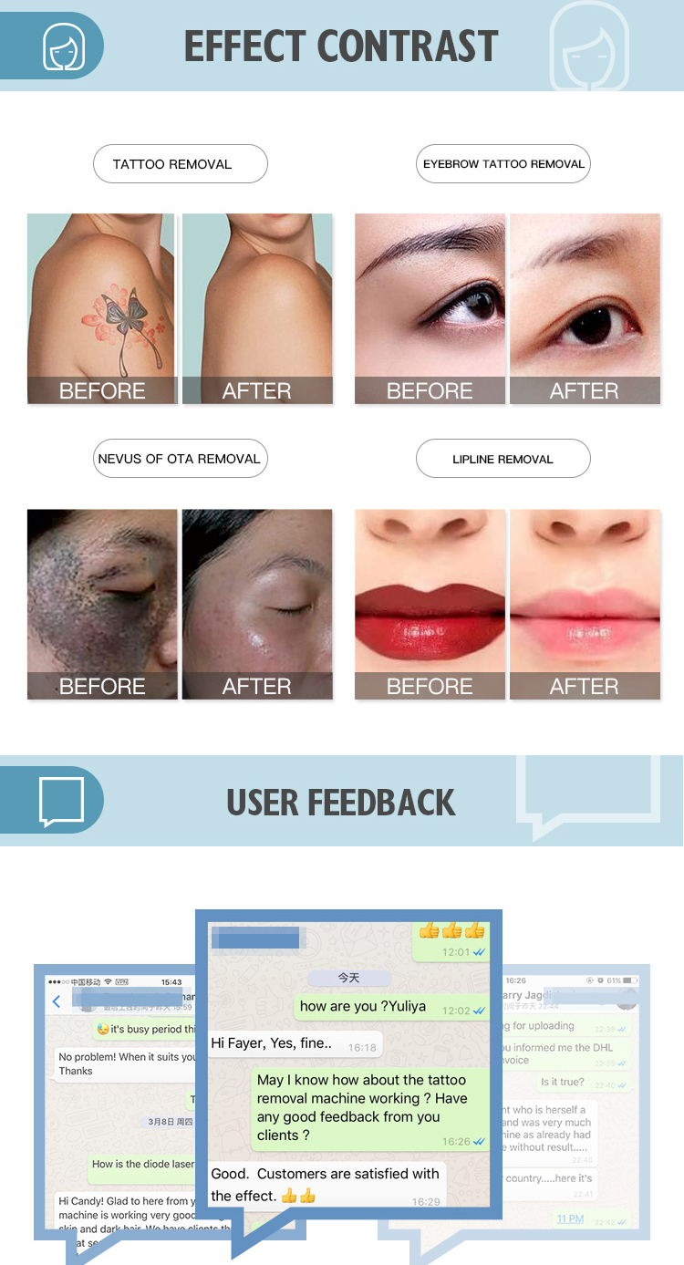 multifunctional use beauty laser / nd yag tattoo removal