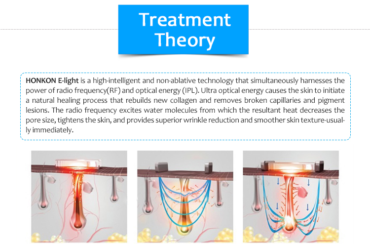 Elight IPL Acne Treatment Hair Removal Blood Vessels Removal Machine
