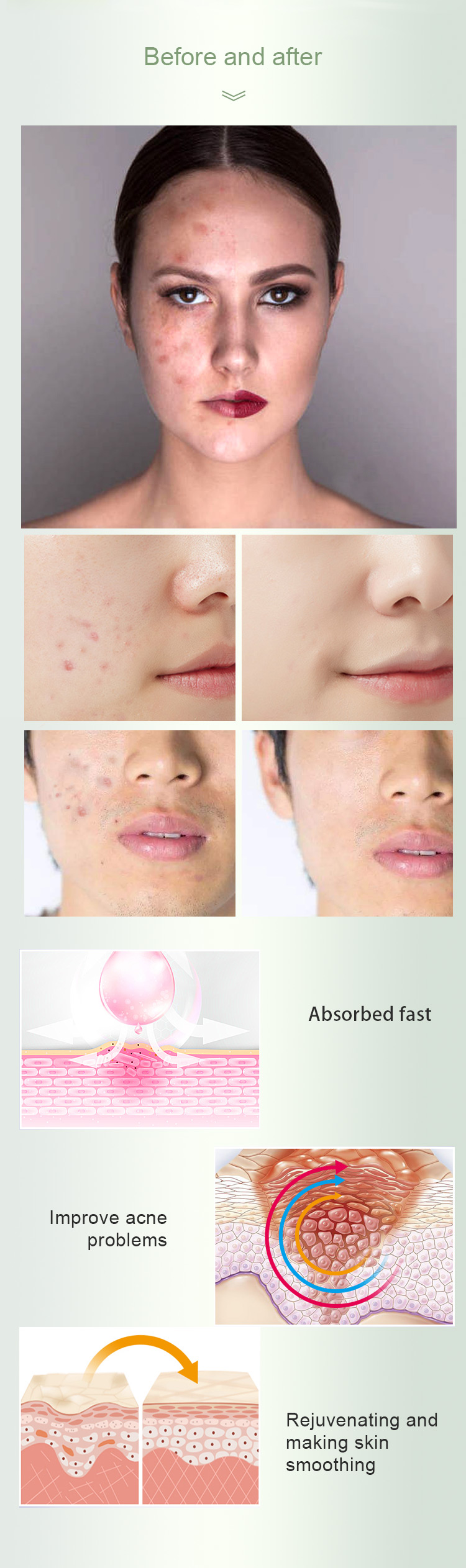 OEM Organic AHA & BHA Acne Treatment Face Serum Hyaluronate Acid Remove Pimples and Acne Facial Serum