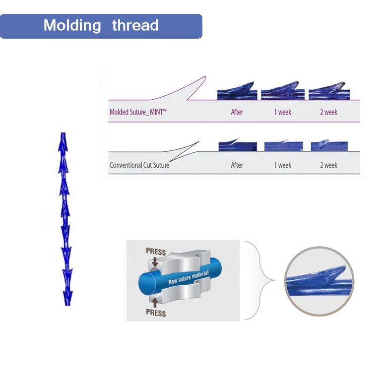 Factory direct supply face lift V line PDO molding thread suture threads with needle for facial shaping