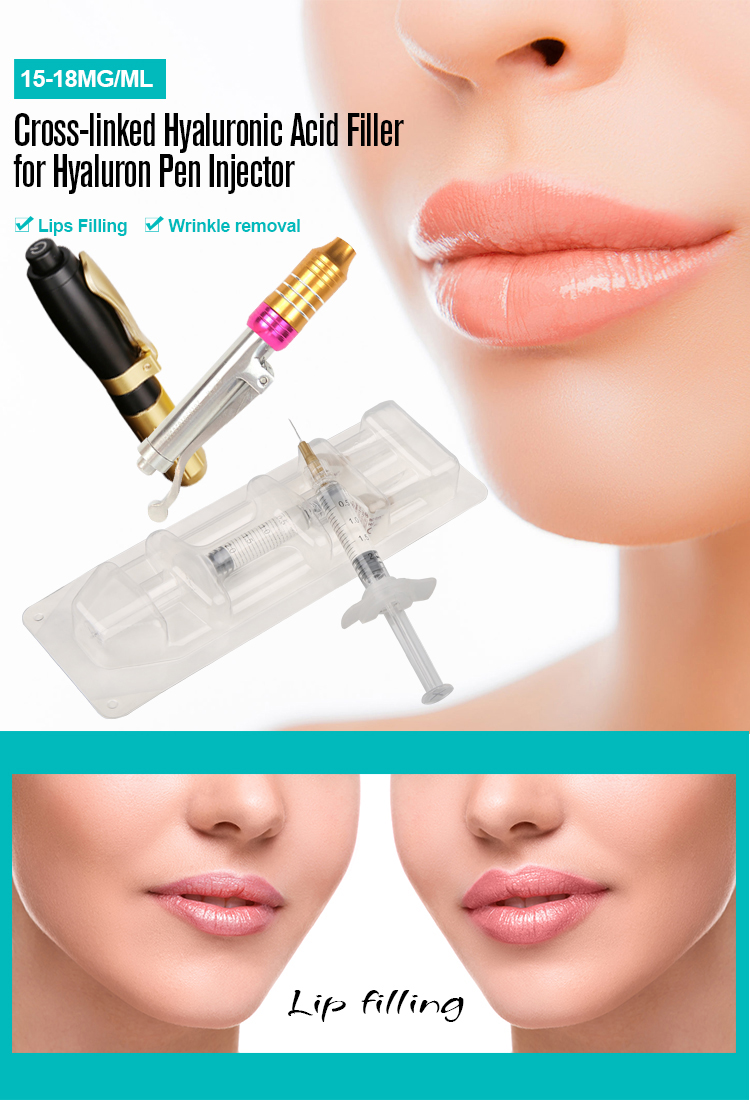15-18 Mg/ml 2Ml/เข็มฉีดยาCross-Linked Hyaluronic Acid HA Lip FillerสำหรับHyaluronicปากกา