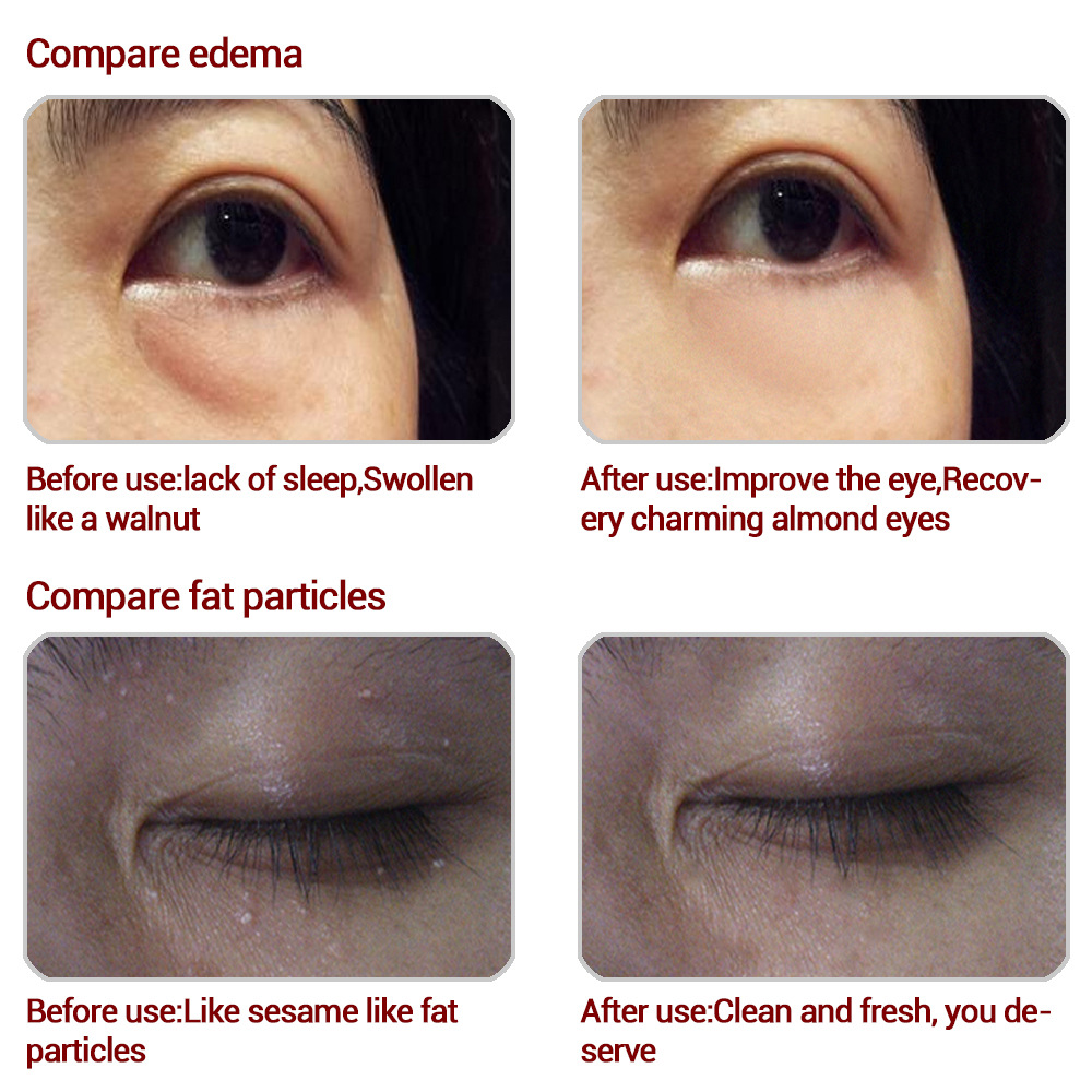 Best Remove Dark Circles Bags Fine Lines Tighten Lift Moisturize And Remove Crow'S Feet Collagen Anti-Wrinkle Eye Cream