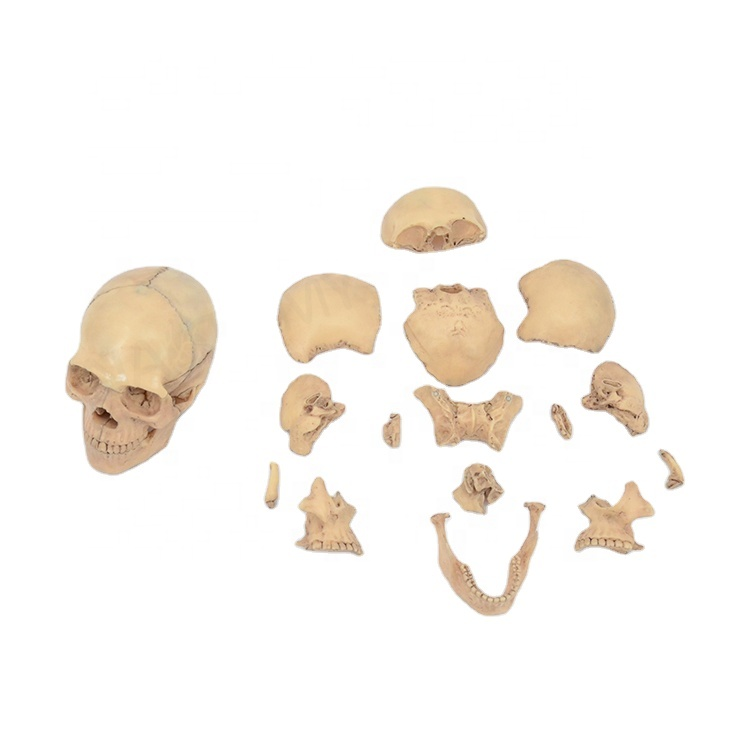 Detachable skull <strong>model</strong> 15 parts,1/2 natural size PNT-1158