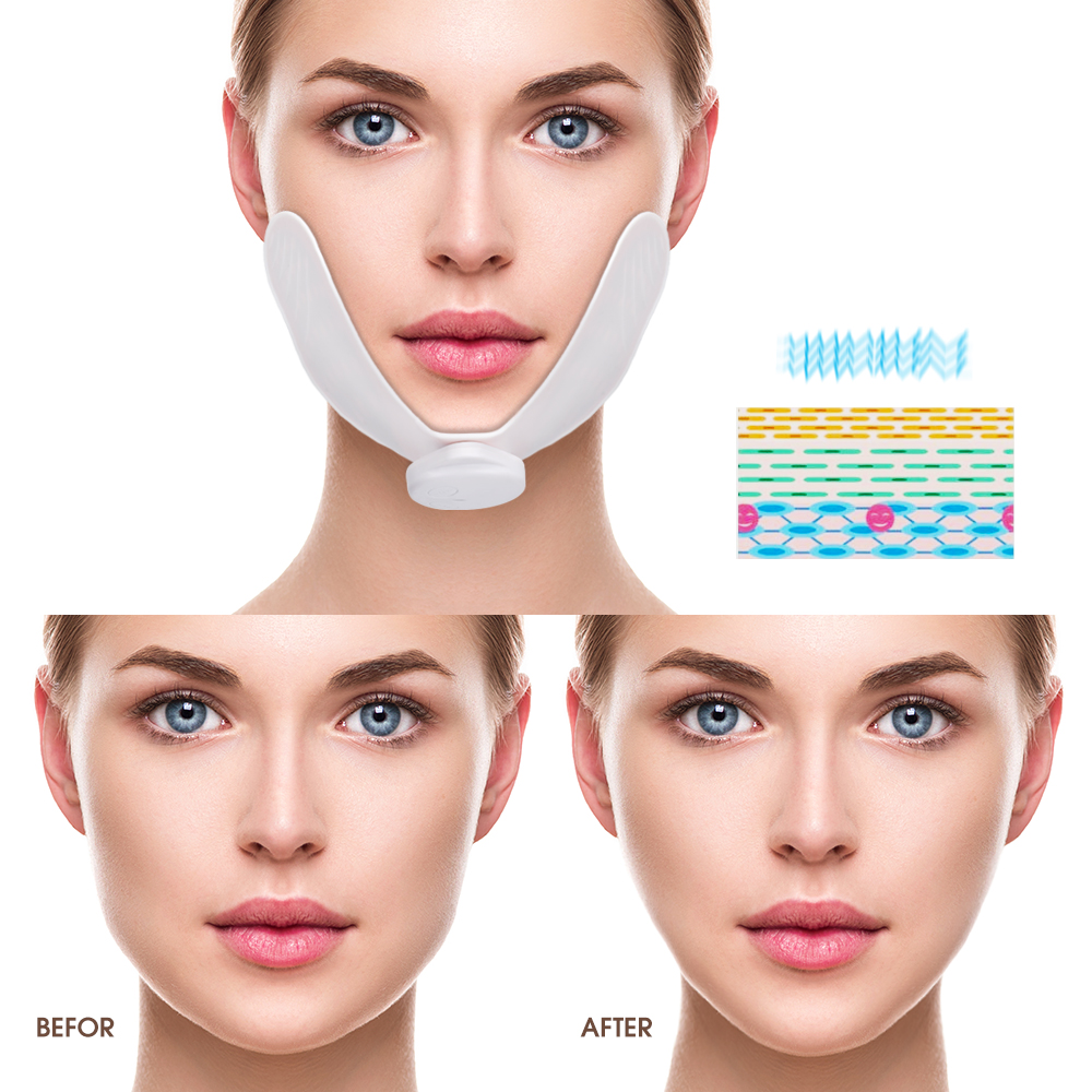 Hailicare Wholesale Slimming v Shape face ems mini rf vibration face ems facial massager
