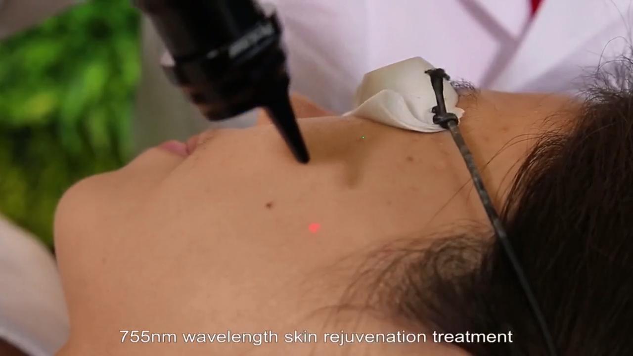 1064nm/532nm Nd YAG laser, Picosecond laser alle kleur tattoo verwijdering machine