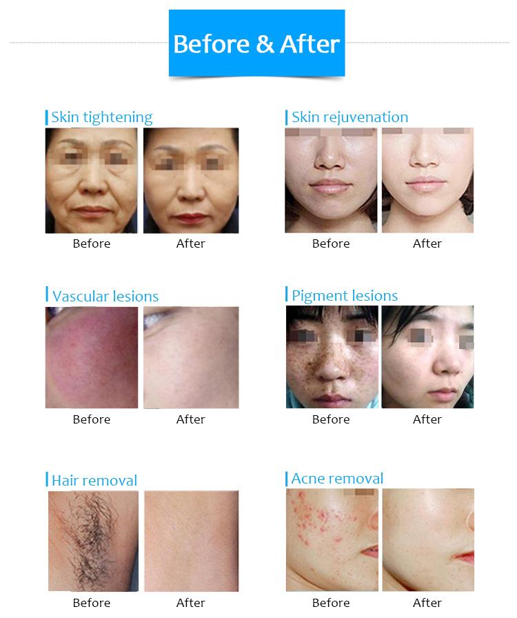 HONKON Professional Hair Removal & Acne Removal IPL Machine S3C
