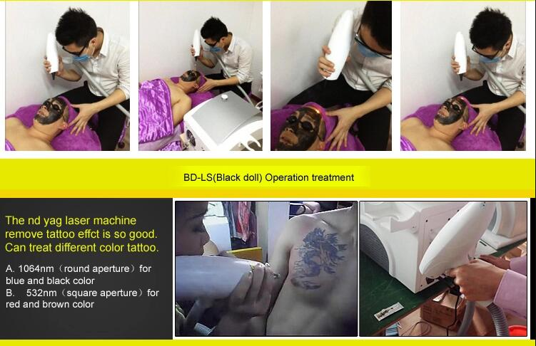 CE approved Q switched laser nd yag laser for tatoo removal