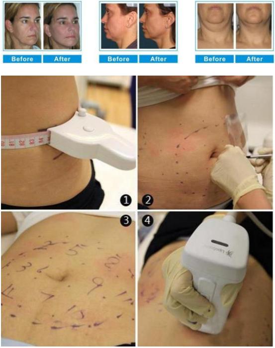 2020 оборудование для красоты hifu лифтинг лица липосаникс косметическое устройство горячее обслуживание oem