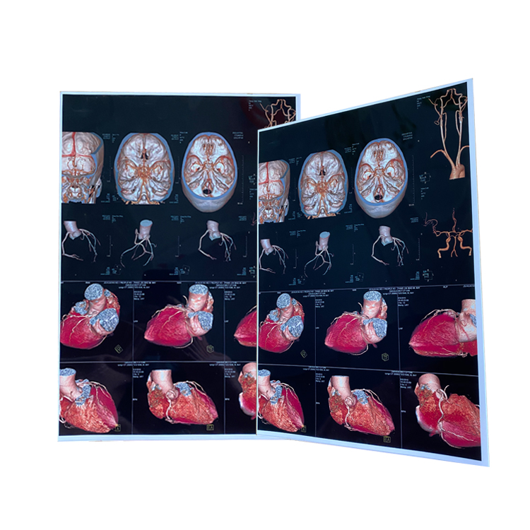 A4 PET Based Dry Ultrasound White Medical Film for Inkjet Printing