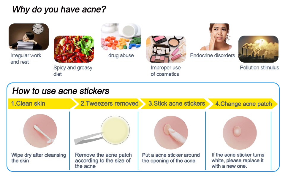 Invisible Absorbing Acnee Patch Traitement Hydrocolloid Acne Pimple Patch