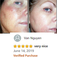 Nourish, Strengthen & Brighten Skin acne pimple remove For All Skin Types acne removal & anti acne cream