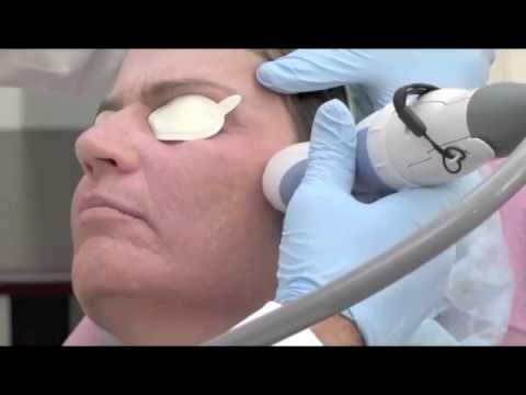 Fractional Non-Ablative Treatment with Palomar Fractional Laser