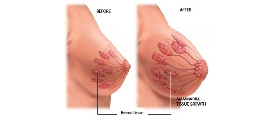 Easy Ways To Get Bigger Breasts Naturally