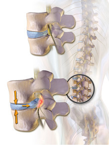 MID ROBO MAX, Spine Decompression Therapy, Chiropractor, Spine, Back bone, Spine solution