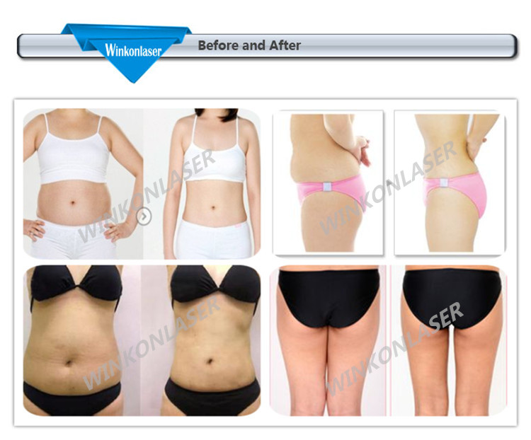 Factory Price! Best Cellulite Removal Machine/ Hifu Slimming ...