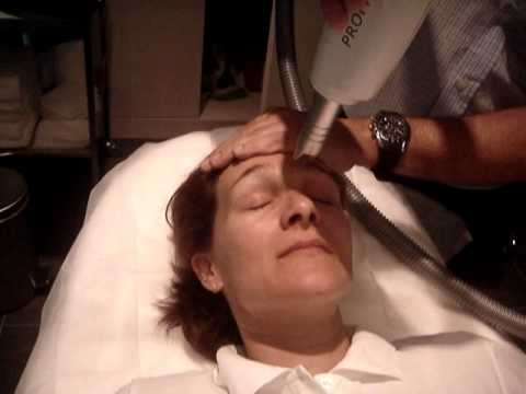 Non-Ablative Skin Rejuvenation using Fractional Erbium YAG Laser : ProFrax-2940.wmv