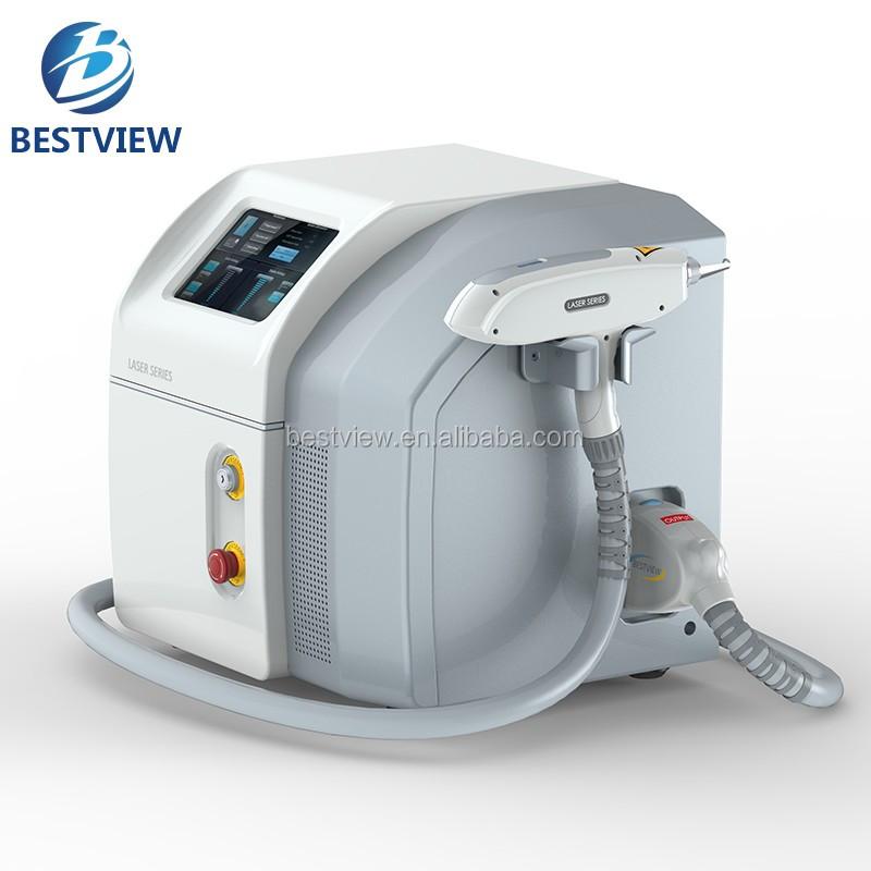 yag laser removal machine